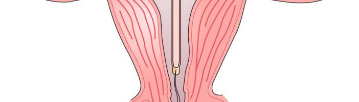 Чем может быть опасна внутриматочная спираль