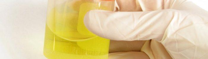 При  каких  заболеваниях  может   быть  повышенное   содержание   лейкоцитов  в  моче?