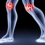 Симптомы  первичного  остеоартроза, диагностические  возможности  и  лечение