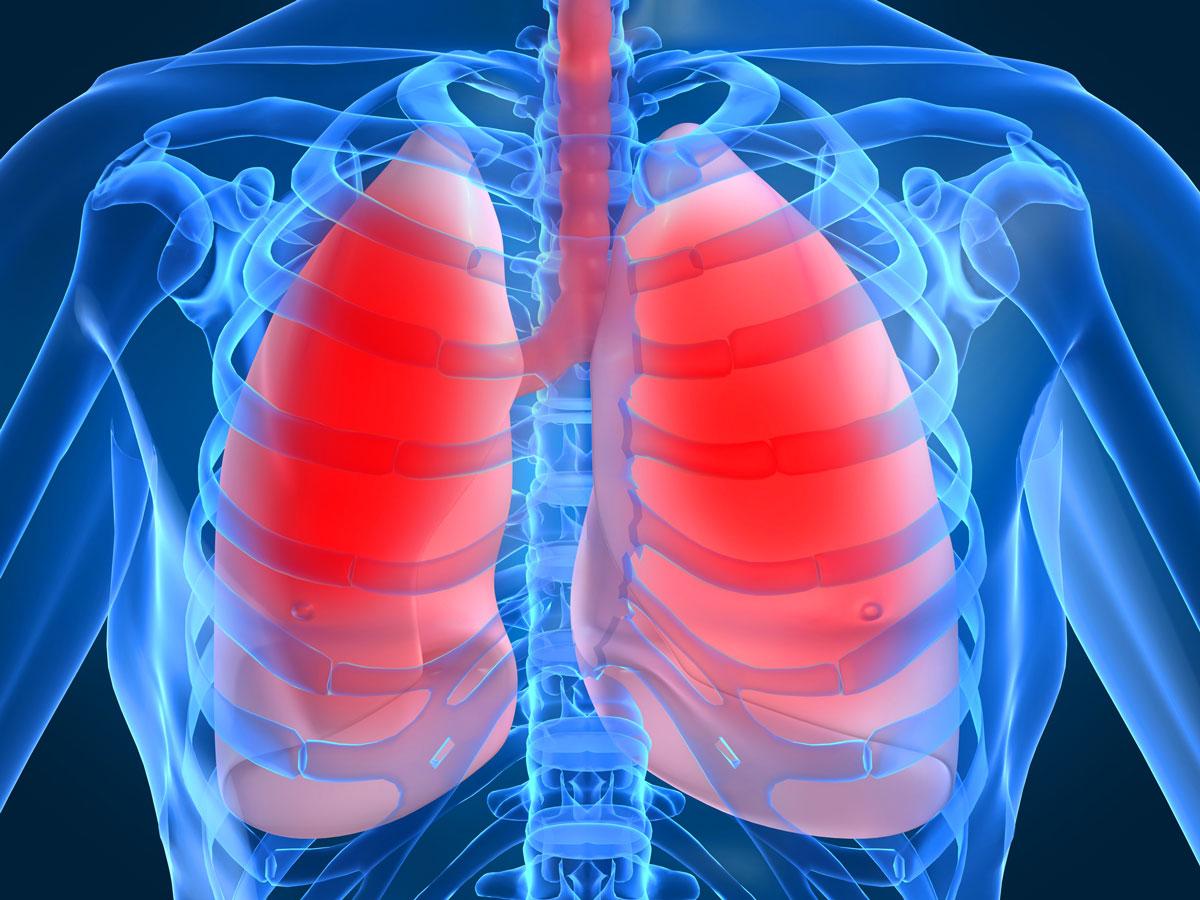 Хламидийная  инфекция   лёгких: симптомы, диагностика и   лечение
