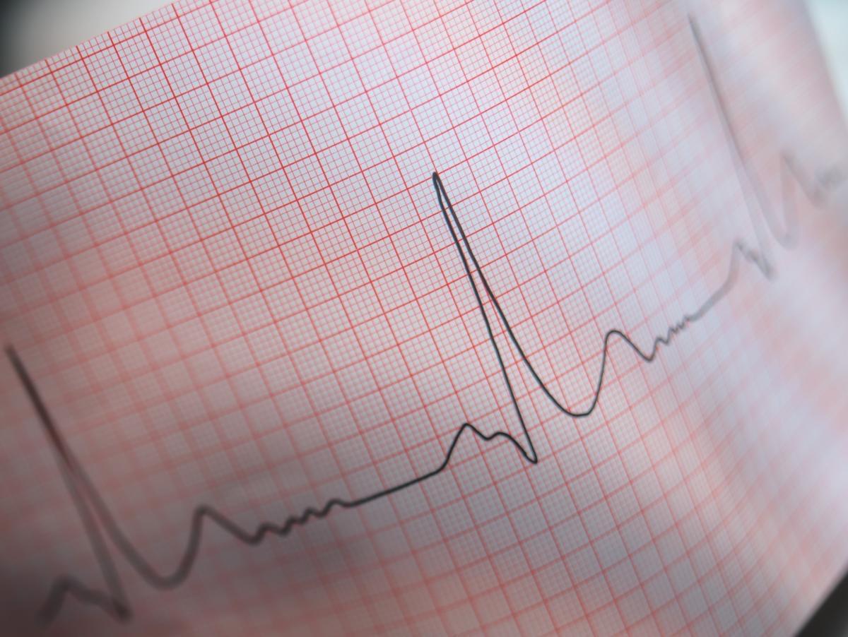Как предотвратить и  остановить  пароксизмальную сердечную аритмию?