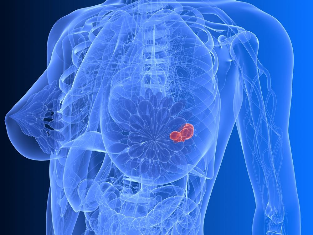 Целевое лечение  рака молочной железы. Реальность или вымысел