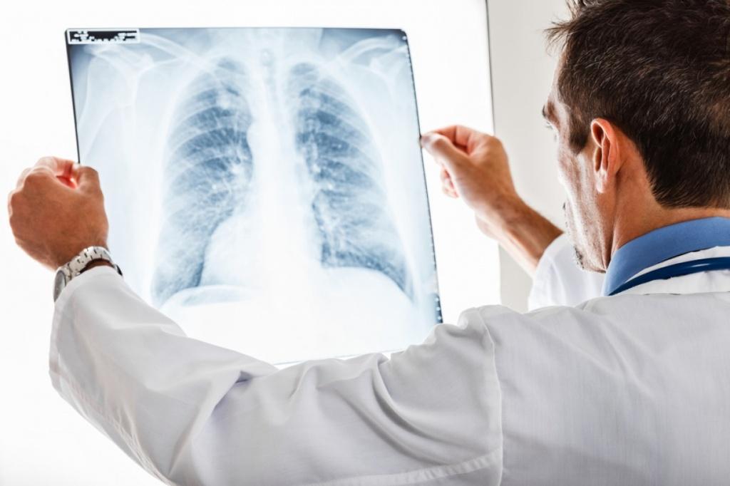 Диагностические методы и принципы лечения заболеваний нижних дыхательных путей