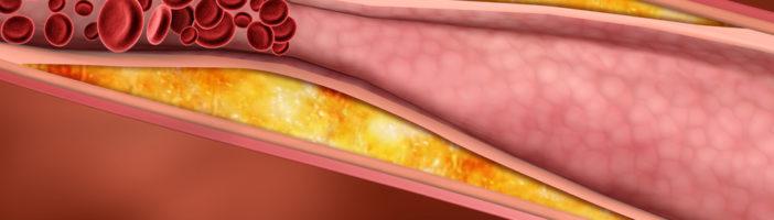 Статины для лечения атеросклероза сосудов головного мозга