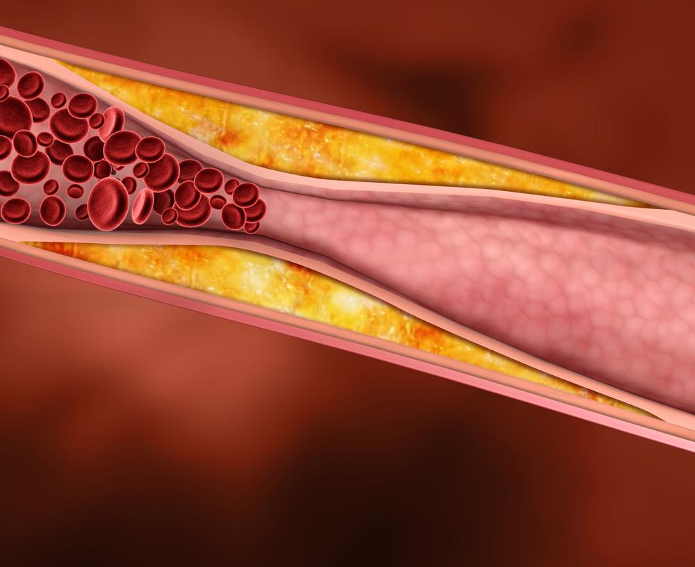 Чем опасен повышенный холестерин в крови