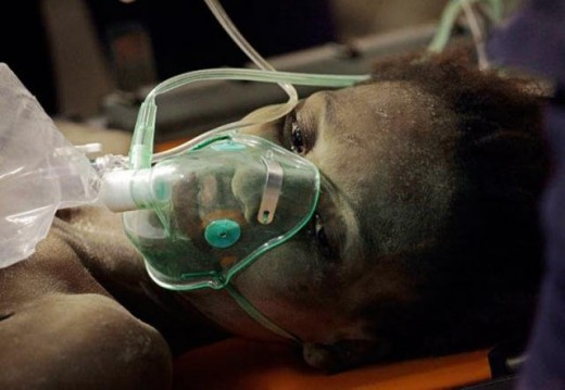 тяжелый случай холеры