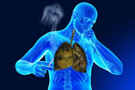 кашель и легкие курильщика