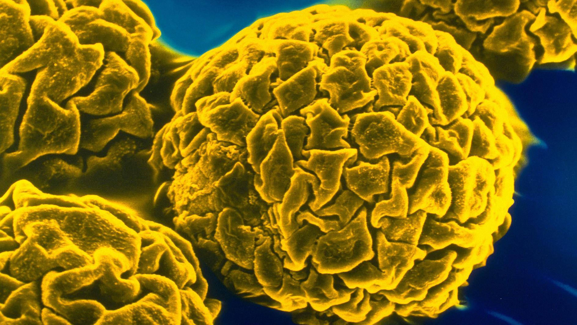 Жёлтая  лихорадка  и  её  профилактика