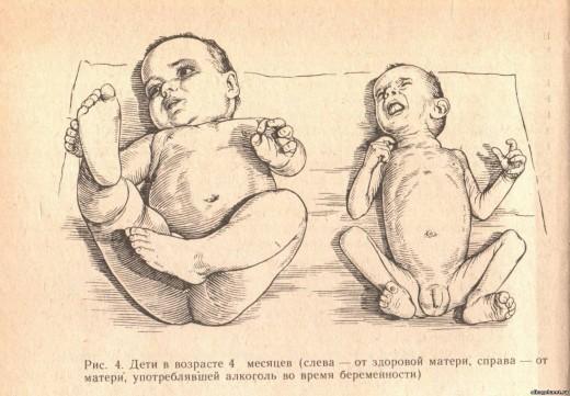 ребёнок родившийся у алкоголиков