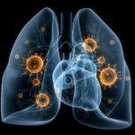Аспирационная пневмония: клинические особенности и методы лечения