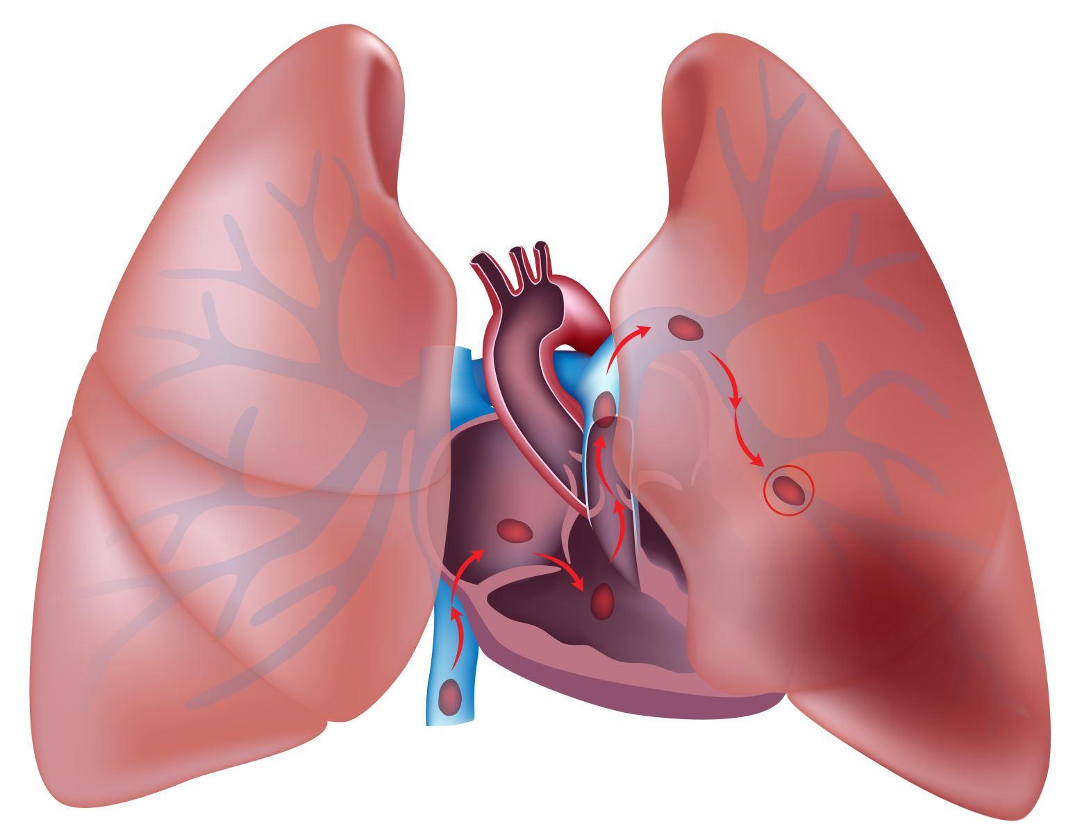 Лечебные мероприятия при тромбоэмболии легочной артерии