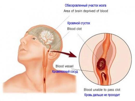 """Тромболитическая терапия направлена на """"растворение"""" тромба"""