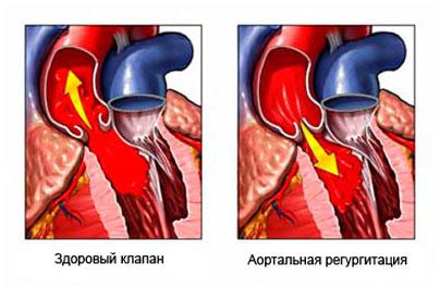 норма холестерина в крови из вены
