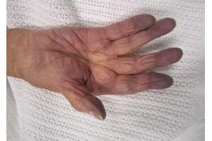 посинение кончиков пальцев