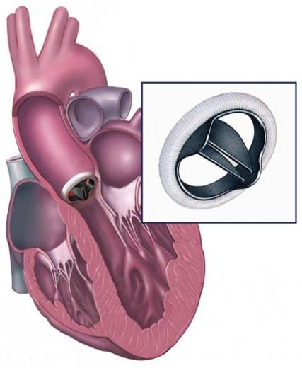 Механический протез аортального клапана