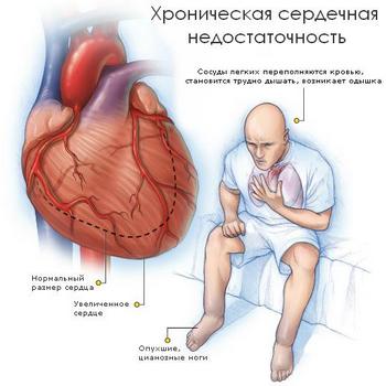 изображение больного и сердца