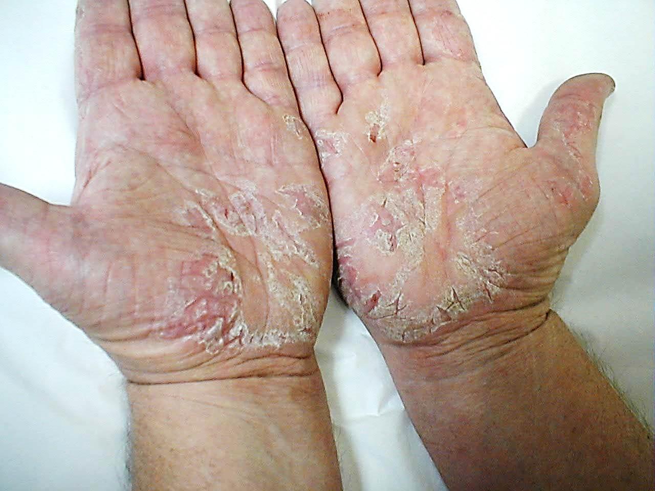 Лечение псориаза в мониках отзывы