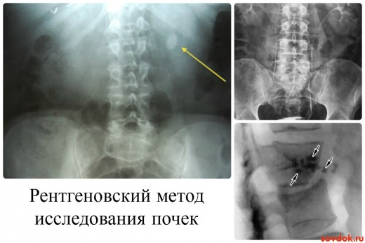 Рентгеновский метод исследования почек