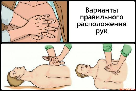 Варианты правильного расположения рук