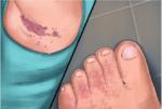 Кандидоз подмышкой и на ноге