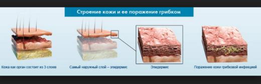 Строение кожи и её поражение грибком