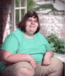 Девушка с синдромом Прадера — Вилли