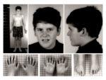 Внешние признаки синдрома Прадера — Вилли у мальчика