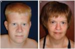 Характерные черты лица больных синдромом Прадера — Вилли