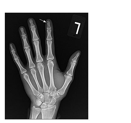 Рентгенограмма оскольчатого перелома дистальной фаланги