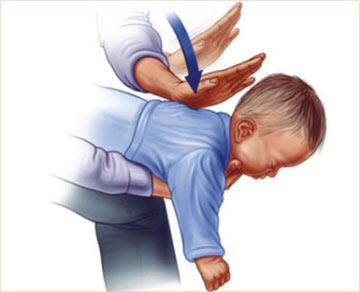Выполнение техники Геймлиха на младенце