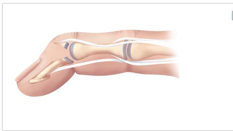Отрывной внутрисуставный перелом