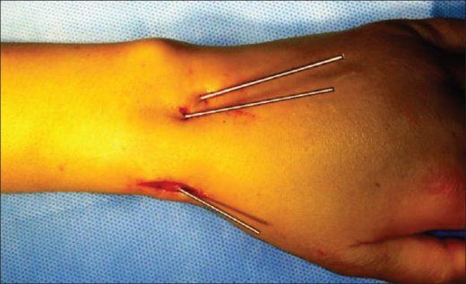Пример чрескожной фиксации медицинскими спицами