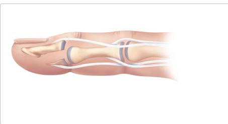 Отрывной перелом глубокого сгибателя пальца кисти