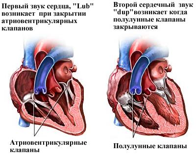 Тоны сердечного удара, различимые ухом