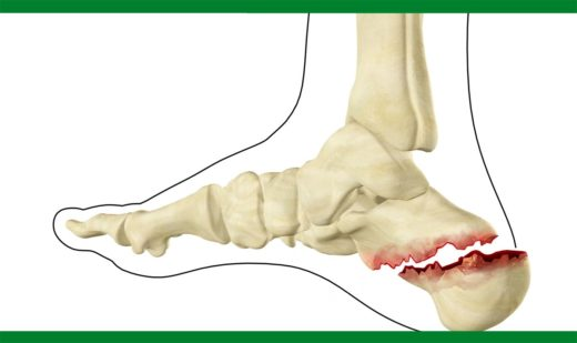 Смещённый перелом пяточной кости