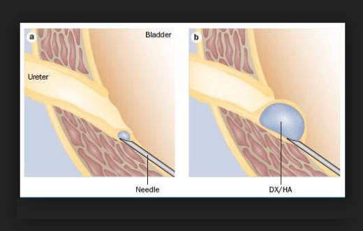 Эндоскопическая пластика устья мочеточника при ПМР