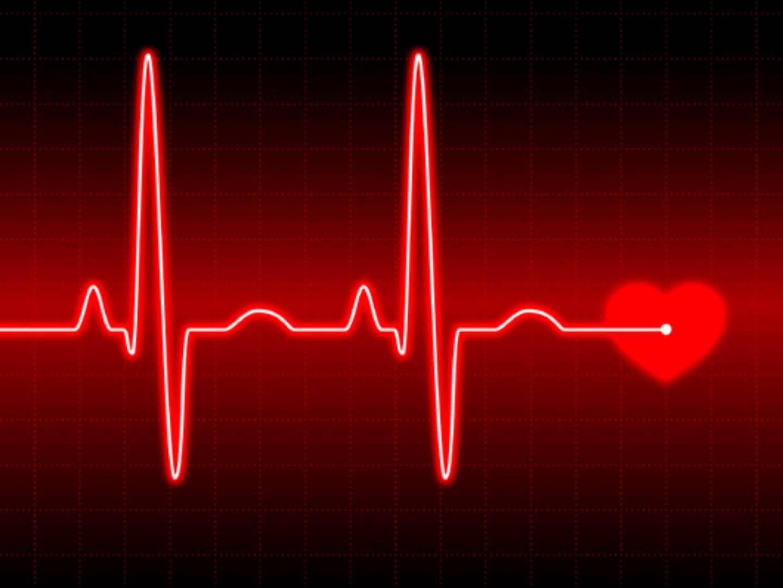 Симптомы и причины мерцательной аритмии: патология сердца, знакомая многим