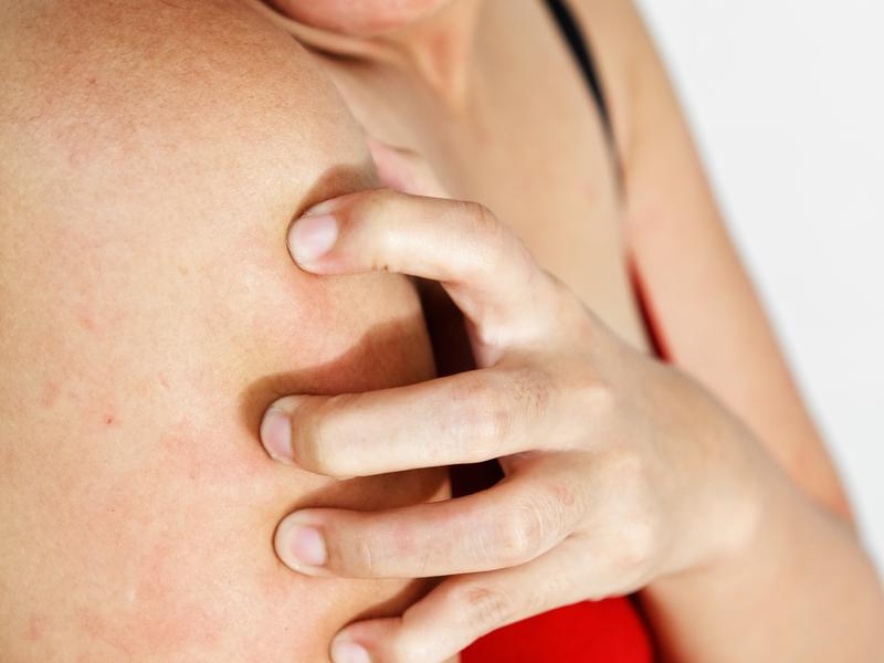 Сильный зуд и сыпь аллергия