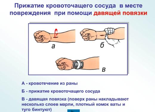 Алгоритм тампонады при артериальном кровотечении