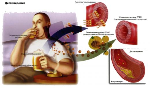 Алкоголь при повышенном холестерине