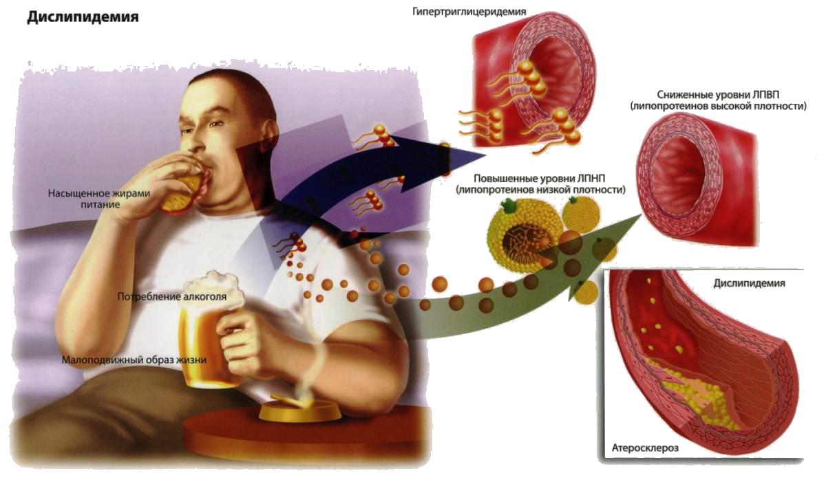 Что нужно есть чтобы снизить плохой холестерин