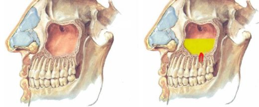 Анатомия гайморовой пазухи