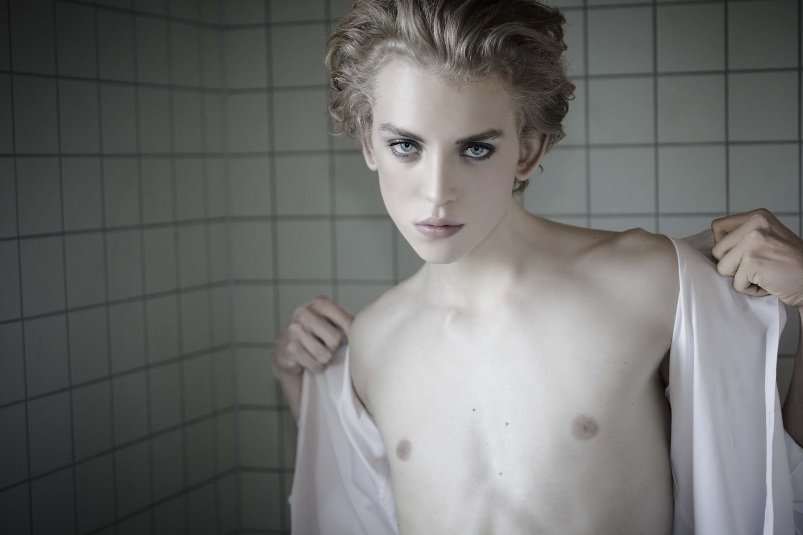 Синдром Морриса: мужчина, женщина или гермафродит?