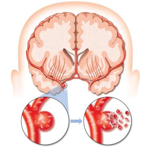 разрыв тромбированной аневризмы мозга