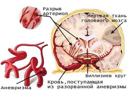 схема разрыва аневризмы