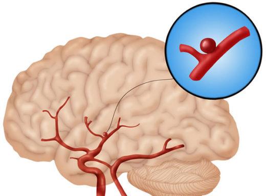 схема аневризмысосудов головного мозга