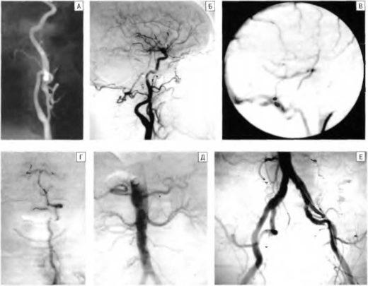 ангиография сонных артерий