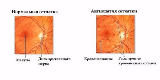 схема ангиопатии сетчатки