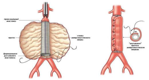 Резекция аорты