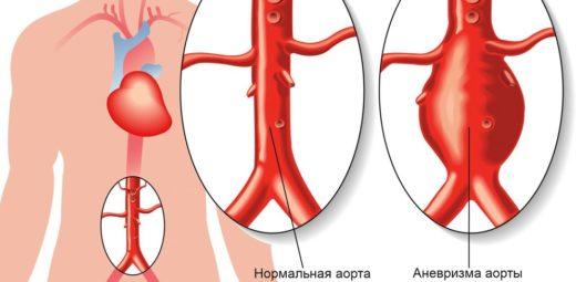 Нормальная аорта и патологическая